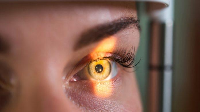 Prevención del glaucoma