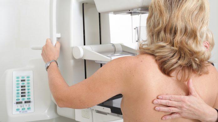 Hospital HLA universitario Moncloa, en cáncer de mama